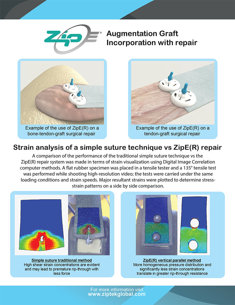 ZipE® Augmentation Graft Fixation and Dynamic Image Capture Comparison