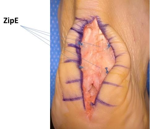 Achilles Tendonitis-Haglund Repair