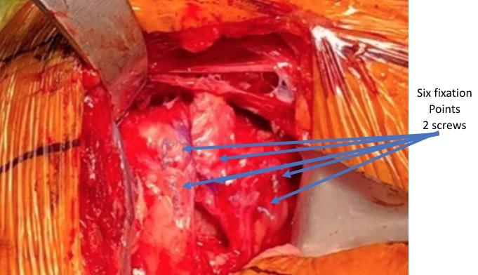 Shoulder Replacement-subscapularis Closure
